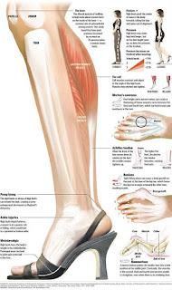 Inilah Bahaya jika Memakai High Heels Terlalu Sering. Perlu Kalian Ketahui para Wanita!.