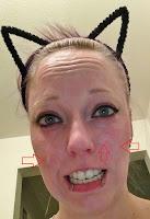 cat ears cute tca peel burn skin red funny