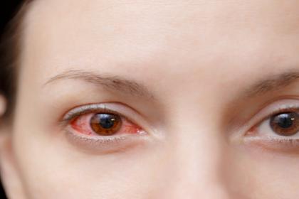 Berikut Penyebab Mata Merah Karena Softlens