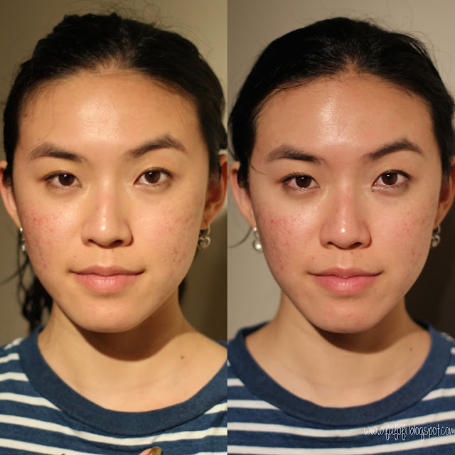 Before and After Skin Shots Tony Moly Egg Pore Tightening Cooling Pack