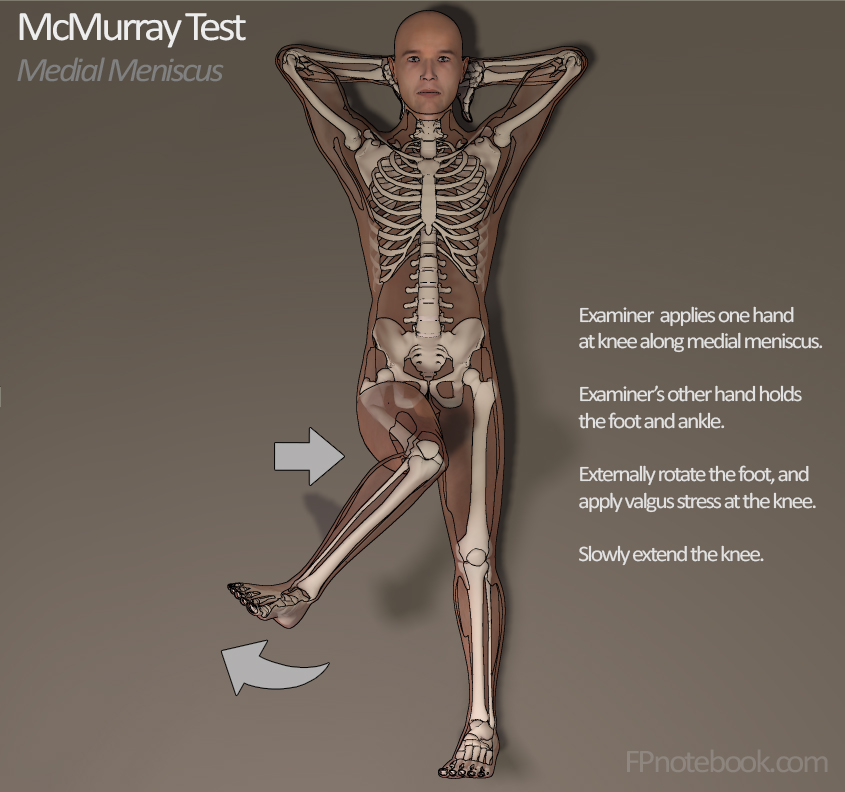 McMurrays Test DNB MS orthopaedic Physical Examination – drlionheart