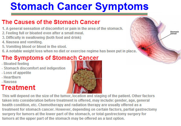 Abdominal Tumor Symptoms Cancer