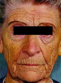 Cirugia Plastica - Dra. Birmania Ramos: Exposición al sol y riesgos para la piel