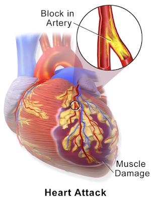 Kematian Mendadak, Akibat Penyakit Jantung...!?? Berikut Gejala Penyakit Jantung...!!