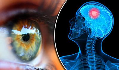 Ποιες σοβαρές παθήσεις φαίνονται στα μάτια – Πέντε περιπτώσεις που ένα τεστ σώζει ζωές 2017-09-20_114705