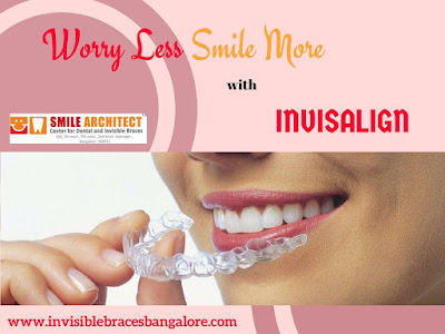 invisalign in bangalore