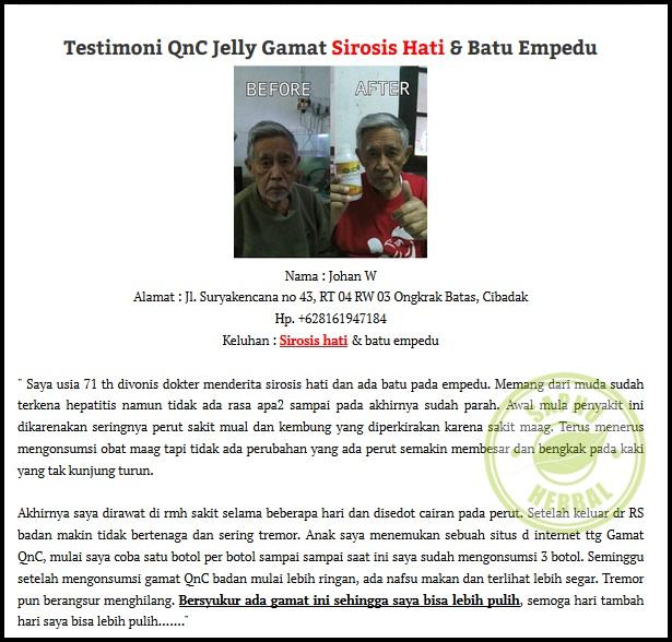 Obat Jerawat Alami Paling Ampuh Dan Terbukti: Obat Sirosis Hati Herbal 100% Efektif & Aman, Terbukti