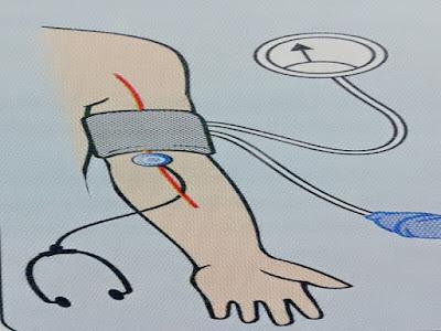 Cara Mengukur Tekanan Darah Dengan Sfigmo Atau Sfigmomanometer