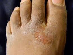 cara tradisional mengatasi gatal eksim menahun pada kaki