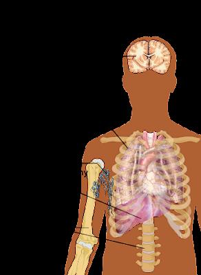 Metastatic Lung Cancer