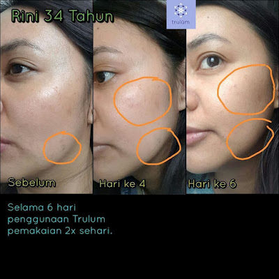 Jual Obat Penghilang Jerawat Trulum Skincare Kota Pontianak Kalimantan Barat