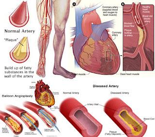 Makanan Super (Superfoods) Pembersih Pembuluh Darah Arteri