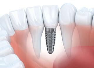 عروض زراعة الاسنان بالرياض