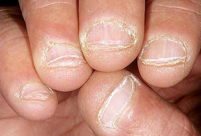 gnawed nails