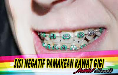 Sisi Negatif Pamakean Kawat Gigi