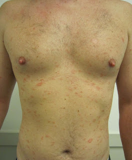 Christmas tree rash picture 3 - chest