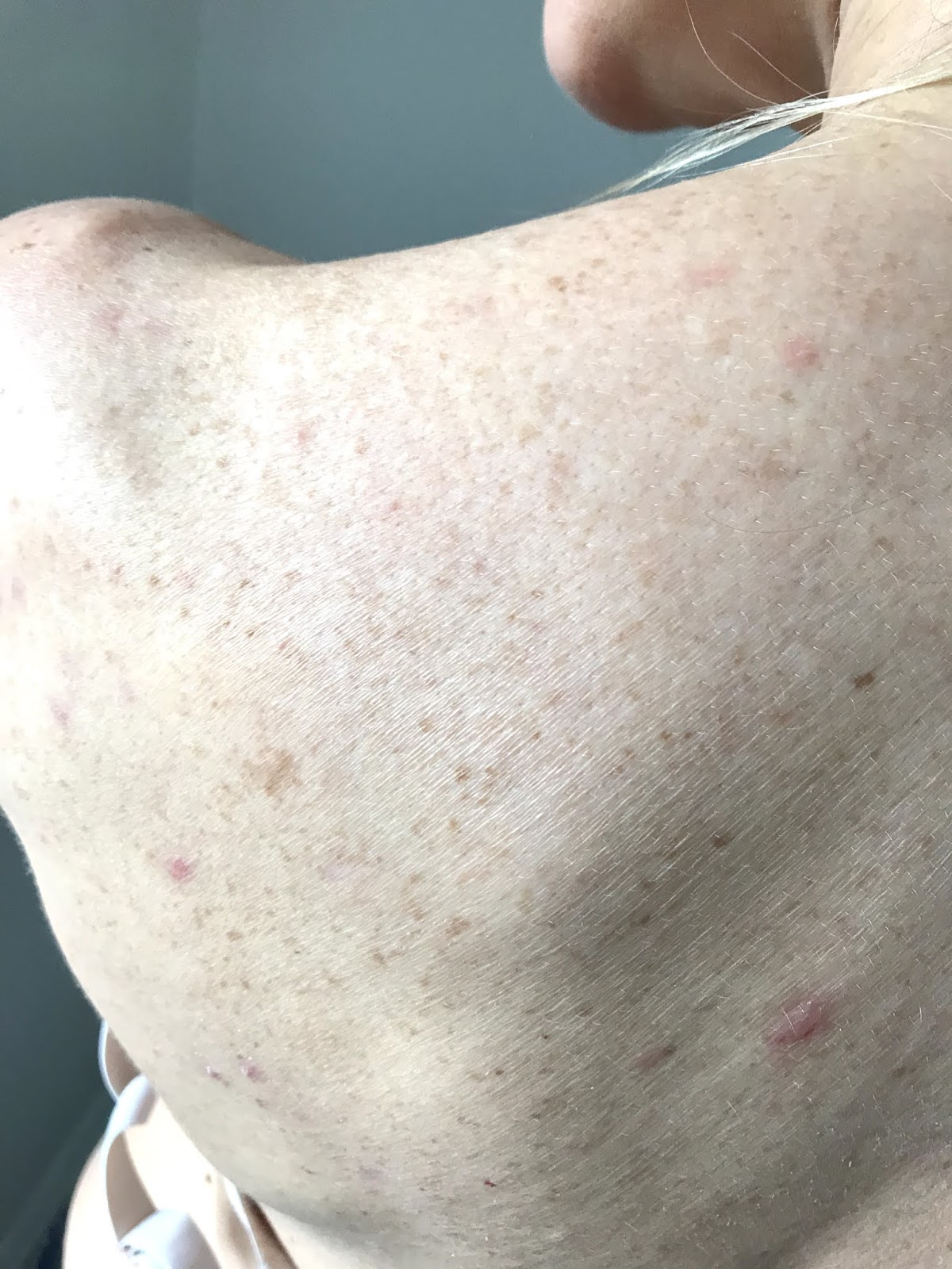 Cleared acne left shoulder after diet and homeopathy