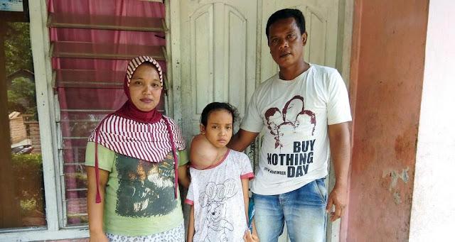 Puja, Bocah Mungil Penderita Tumor Leher dari Desa Rambai