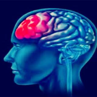 Merawat Kanser Otak Dengan Vivix Shaklee