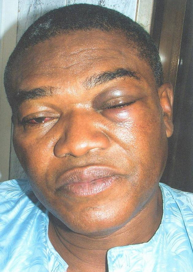 buhari campaign manager attacked by sss