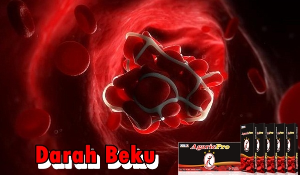 Obat Tradisional Pembekuan Darah Paling Ampuh