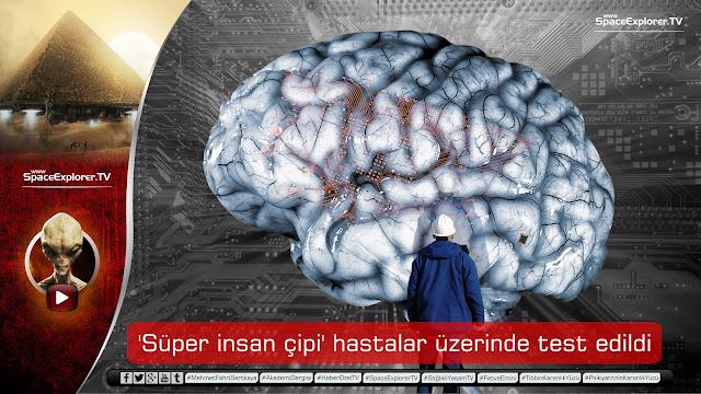 'Süper insan çipi' hastalar üzerinde test edildi