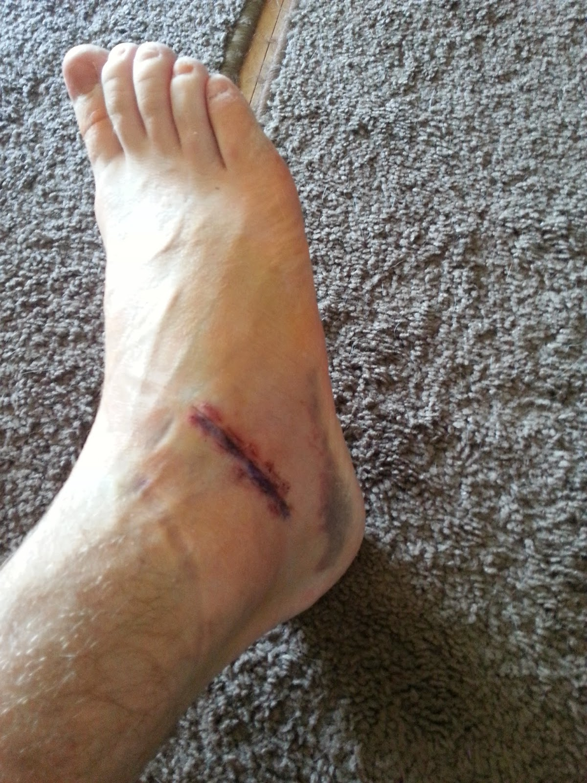 Tarsal Coalition: Walking Boot and physical therapy
