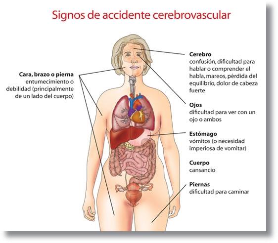 Resultado de imagen para Día Mundial contra el ACV