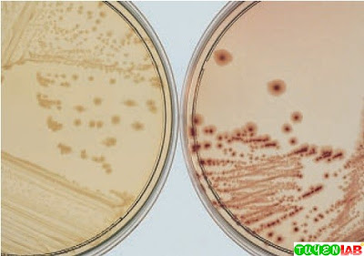 Left, Lactose-negative appearance of Shigella sonnei growing on MacConkey (MAC) agar at 18 to 24 hours of incubation. Right, Lactose-positive appearance of S. sonnei growing on MAC after 48 hours of incubation.