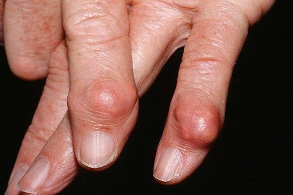 Наросты на пальцах рук — группы риска, симптомы, разные виды лечения