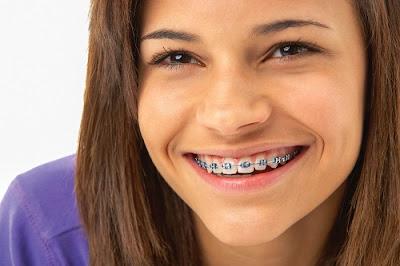 Tìm hiểu về kỹ thuật niềng răng hô