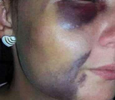 Após sair escondido para festa de aniversário, mulher é espancada pelo marido