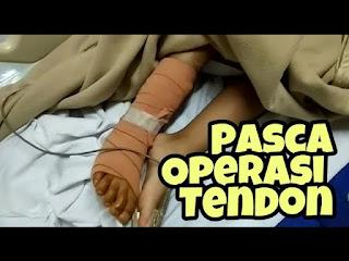 operasi pemanjangan tendon
