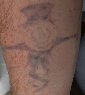 One week after Picosure Tattoo Removal