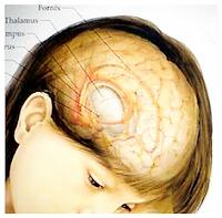 Cara Alami Dan Ampuh Mengobati Tumor Jinak di Kepala Tanpa Operasi