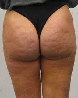 Cellulit na pośladkach ćwiczenia