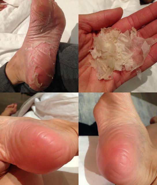 أحلى وأسهل طريقة لإزالة الجلد الميت من القدمين بسرعة وفي المنزل!