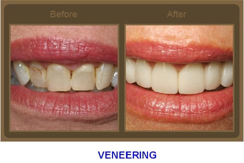 Labial Veneer untuk Estetik Gigi