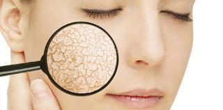 Kulit wajah kering kerap menjadi masalah karena mengganggu penampilan dan terasa tidak nya Cara Mengatasi Kulit Wajah yang Kering