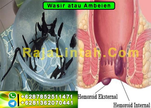 Wasir atau Ambeien Efektif Dengan Terapi Lintah