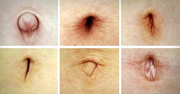 Take A Closer Look At Your Belly Button, If Yours Look Like This, Then You Better Read This Now!