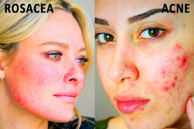 Differences Between Acne and Rosacea
