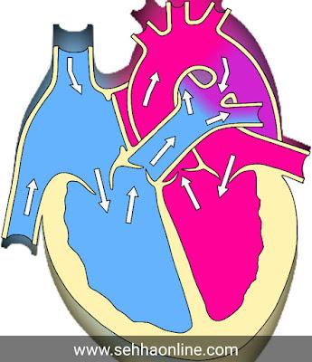 Heart treatment, Heart disease, Heart treatment0 without surgery, Heart symptoms, Causes of heart disease,علاج القلب، أمراض القلب، علاج القلب دون جراحة، اعراض القلب، اسباب مرض القلب،,
