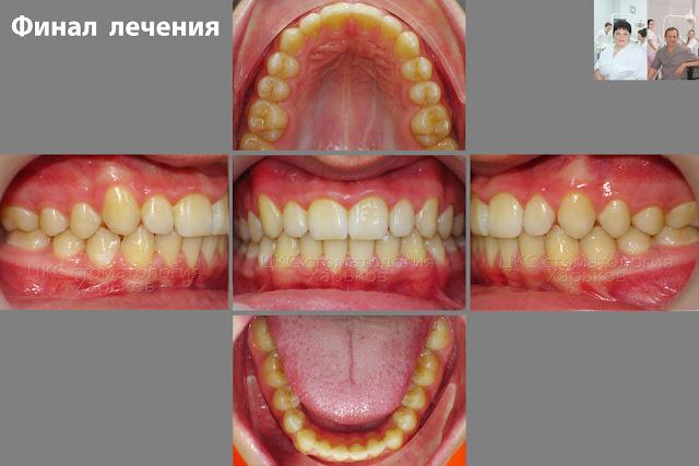 Прикус пациента после лечения брекетами