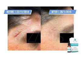 Azanis scar serum terbaik menghilangkan parut