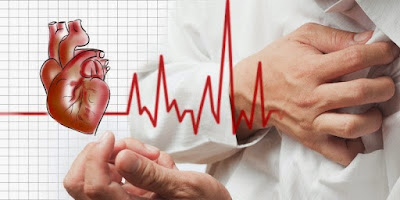 Kenalilah 11 Faktor Resiko Penyebab Penyakit Jantung Aritmia