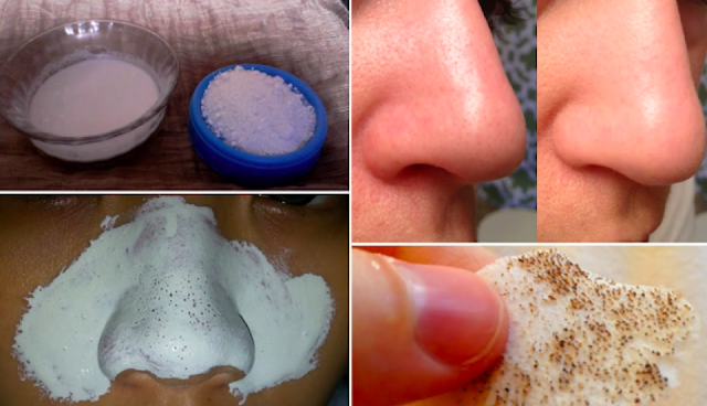 How To Eliminate Black Heads Overnight With These Ingredients