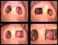 健滙專科中心: 耳鼻喉手術 - 鼻中隔,鼻瘜肉,頸部淋巴結,甲狀腺,腮線