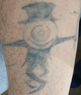 Tattoo fading after third picosure session