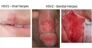 Obat sipilis atau gonore bekasi